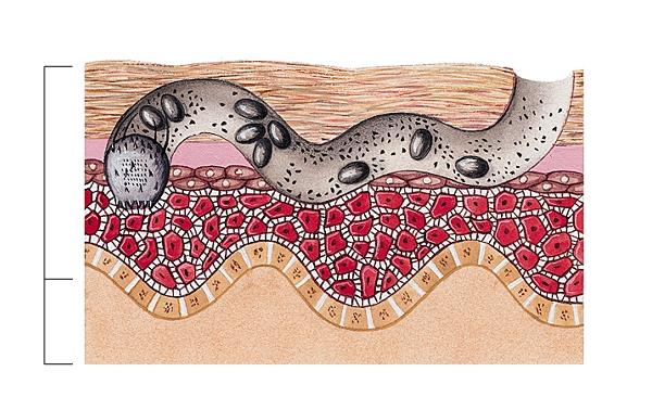 Les analyses sur les helminthes à abakane